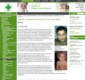 Mumps, Krankheit, Impfung